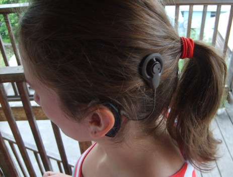 Cochlear_implant2